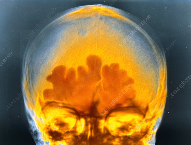 False colour x-ray of head showing sinusitis