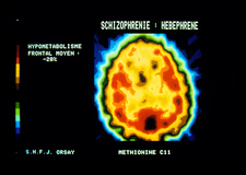 PET scan of brain with schizophrenia