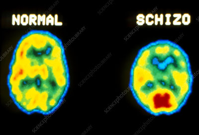PET scans normal and schizophrenic brains