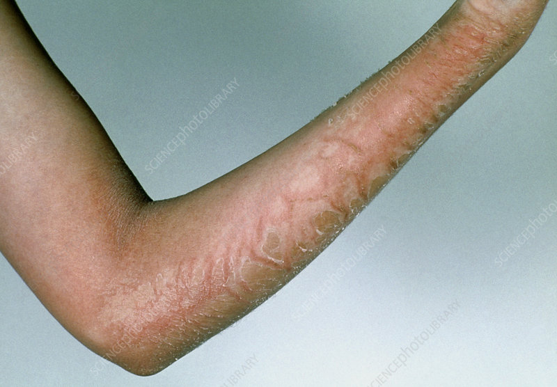 Scarlet fever rash on young person's arm