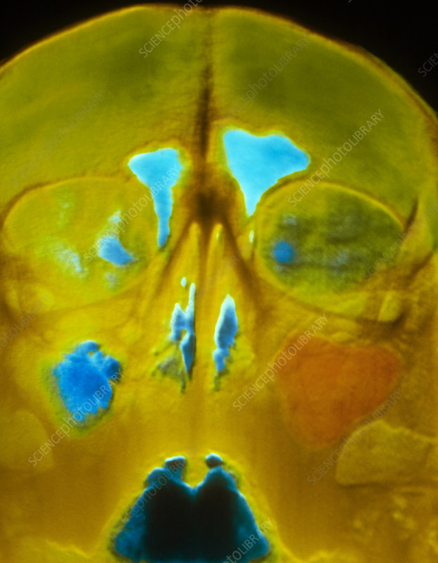 False-colour X-ray of the skull showing sinusitis