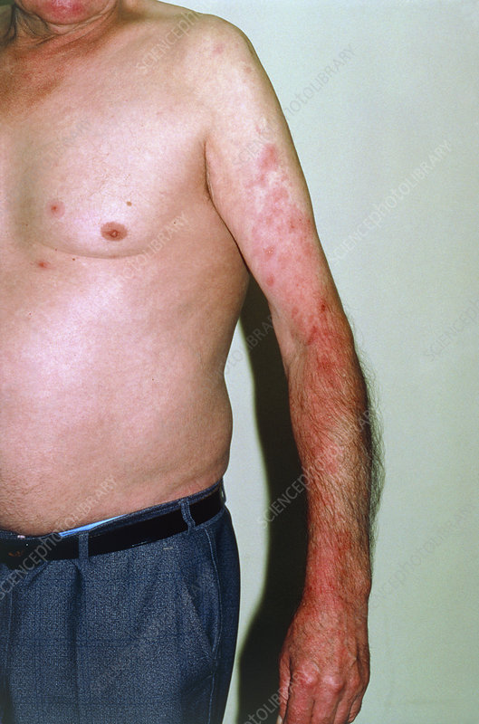 Shingles caused by Herpes Zoster
