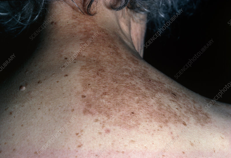 Rash on back following shingles (herpes zoster)