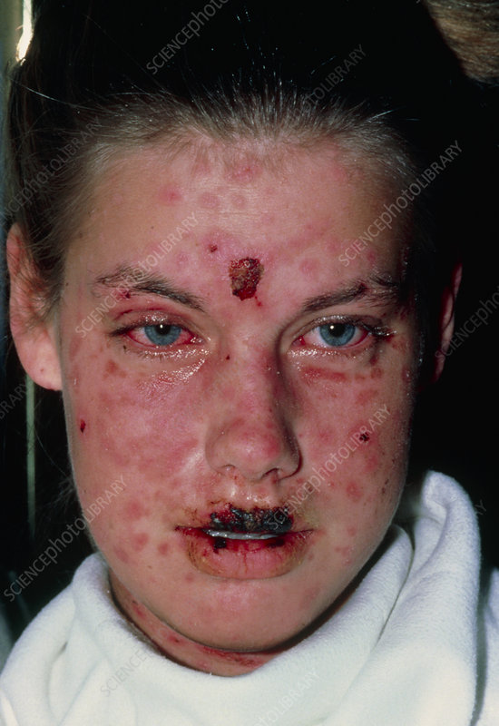 Girl with Stevens-Johnson Syndrome
