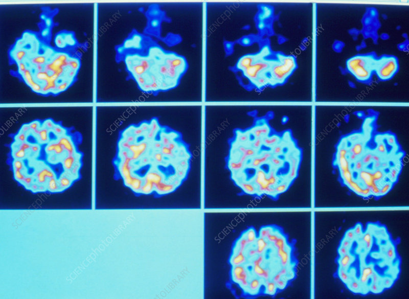 PET scan series of an hallucinating schizophrenic