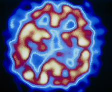 Hallucinating in schizophrenia, PET scan