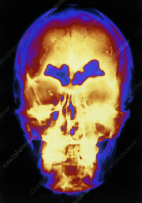 F/col X-ray showing skull with frontal sinusitis