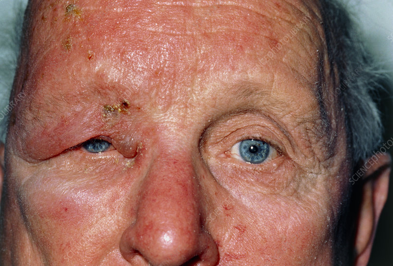 Man affected by shingles (herpes zoster)