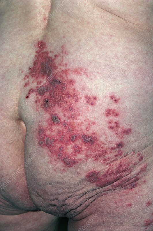 Patient lower back affected by shingles