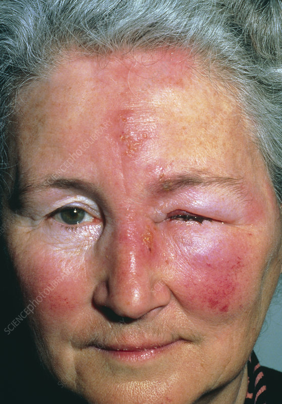 Shingles on face