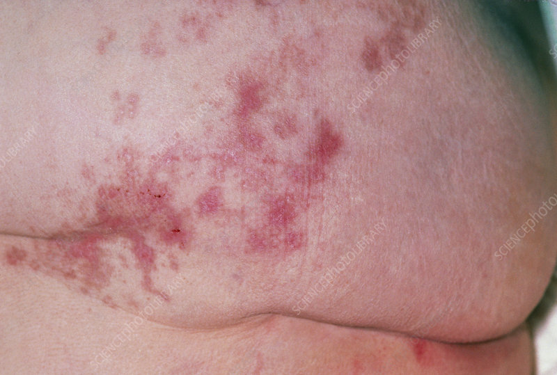 Close up of adult buttock with shingles scars - Stock ...