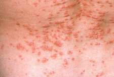 Red papules (lumps) on the skin due to scabies