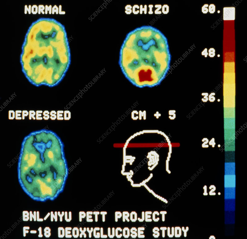 the use of brain scans for evidence of blood flow patterns related to mental illness Brain blood flow studies of language and memory the brain as brain activity increases blood flow to use radioactive water (h215o) and pet scans to.