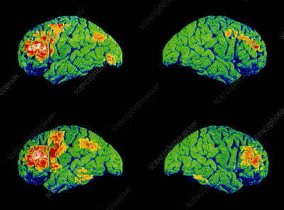 PET brain scans of schizophrenic speaking