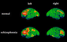 Colour PET brain scans of schizophrenic speaking