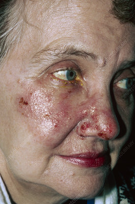 Herpes zoster blisters on woman's face