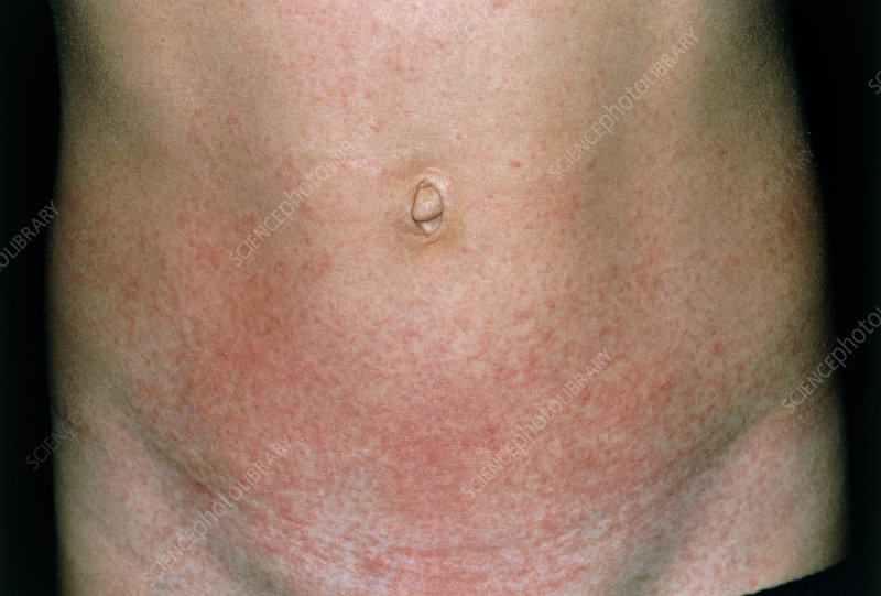 Scarlet fever rash on abdomen of 6-year-old boy