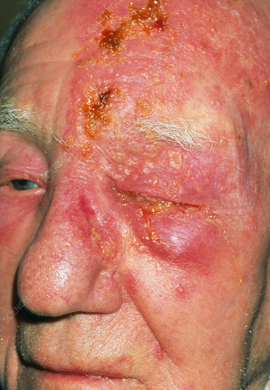 Shingles on head of elderly male, 3rd day
