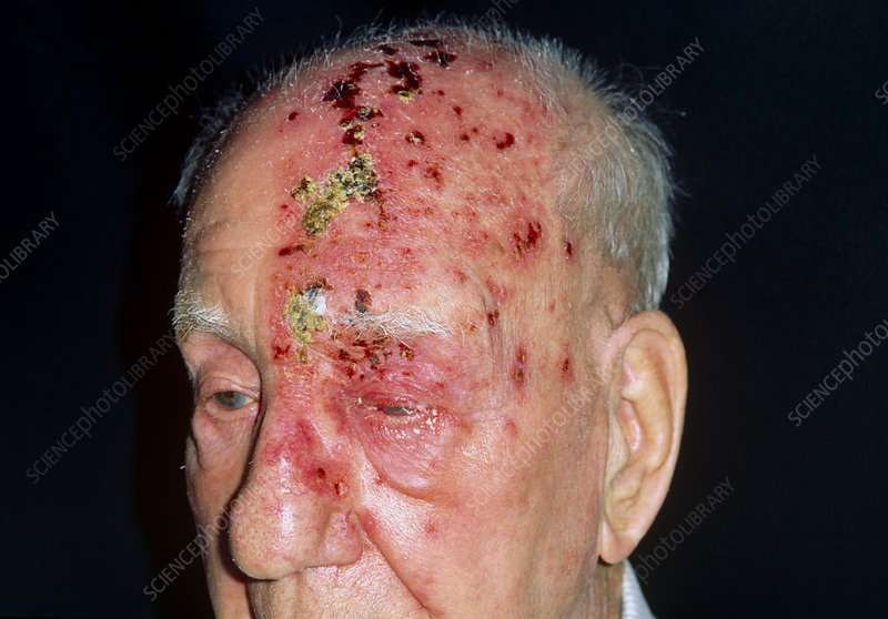 Shingles attack on head of elderly male, 5th day