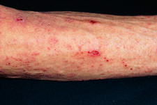 Scabies skin infection seen on man's arm