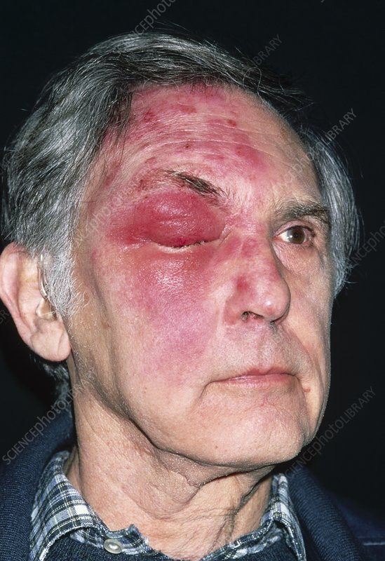 Shingles attack on head of elderly male