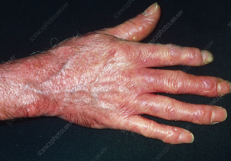Red, shiny & tight skin on hand due to scleroderma