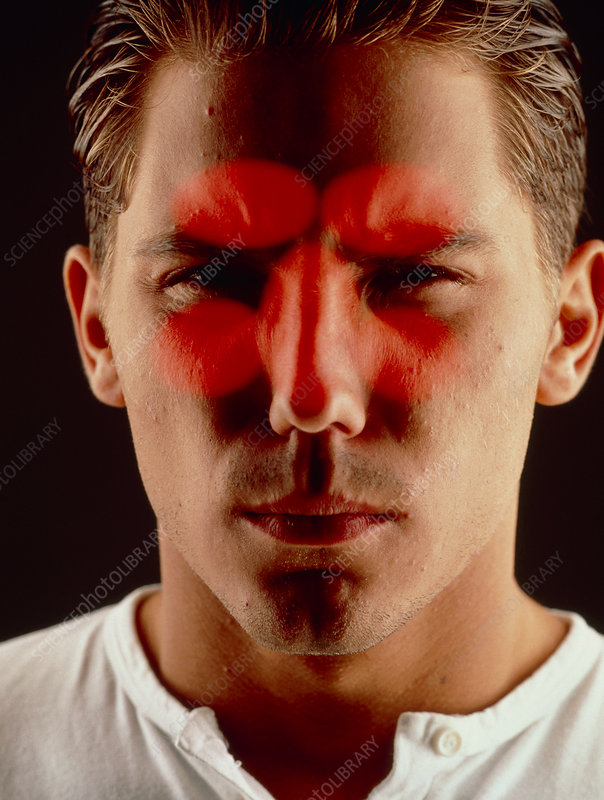 Sinusitis: male face with red sinuses highlighted
