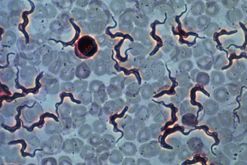 LM of blood infected with parasitic protozoans