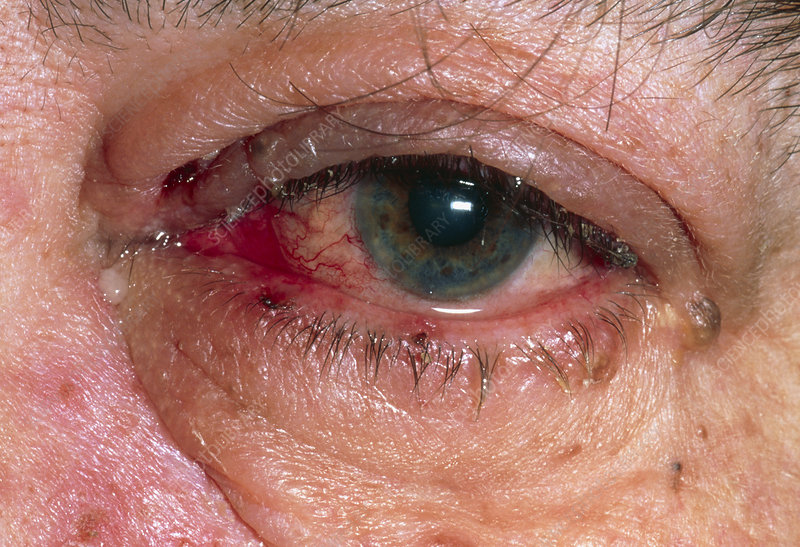 Eye affected by herpes zoster (shingles)