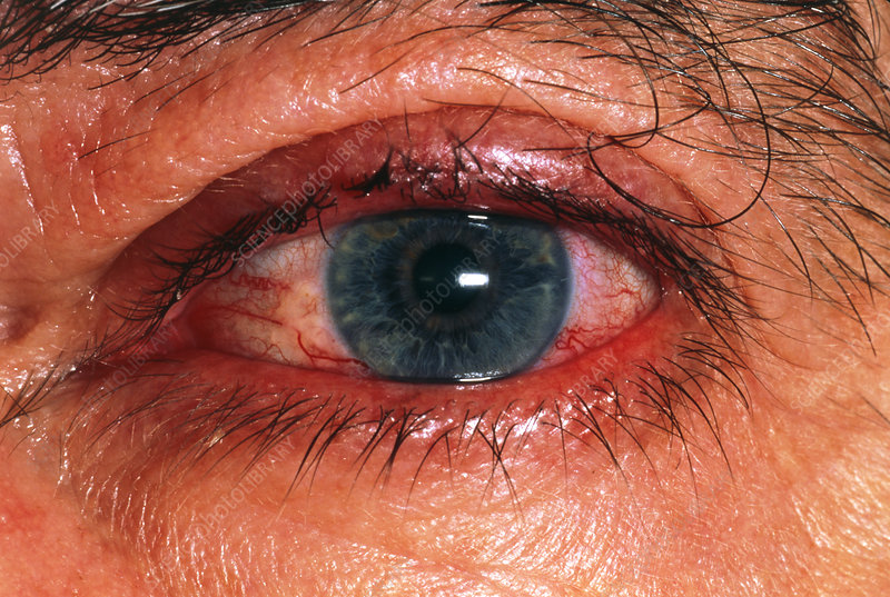 Red eye occuring prior to a shingles rash