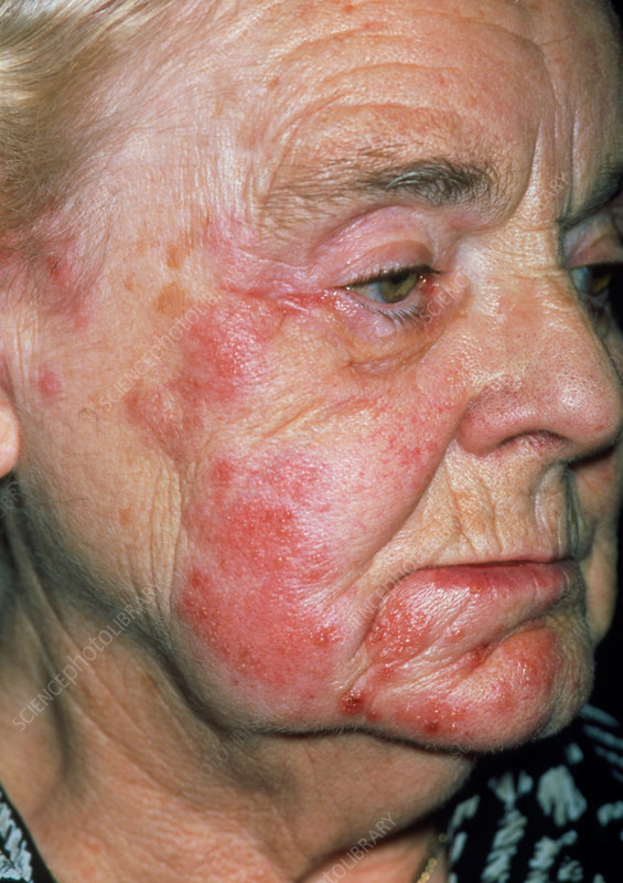 Herpes zoster rash on an elderly woman's face