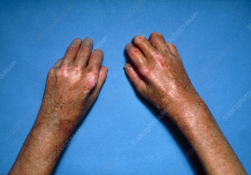 Shiny toughened skin on hands due to scleroderma
