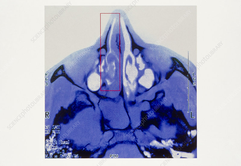 Sinusitis CT scan