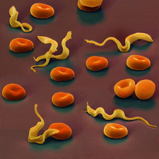 Colour SEM of Trypansoma brucei protozoa in blood