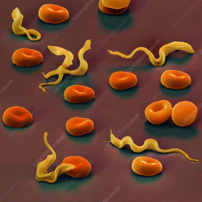 Colour SEM of Trypansoma brucei protozoa in