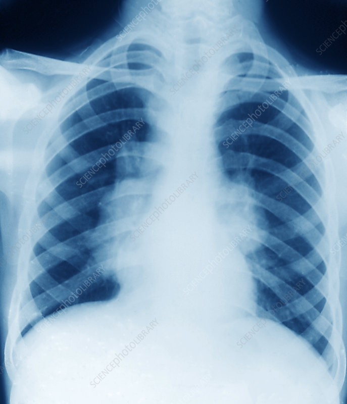 Sarcoidosis Lung X-ray