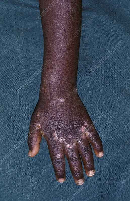 scabies on hands. Scabies, whichscabies dec scratches Mite, hand scabies norwegiansee latest
