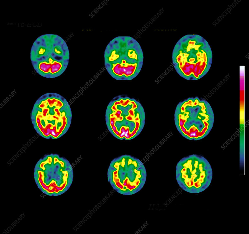 Degenerative brain disease, SPECT scans