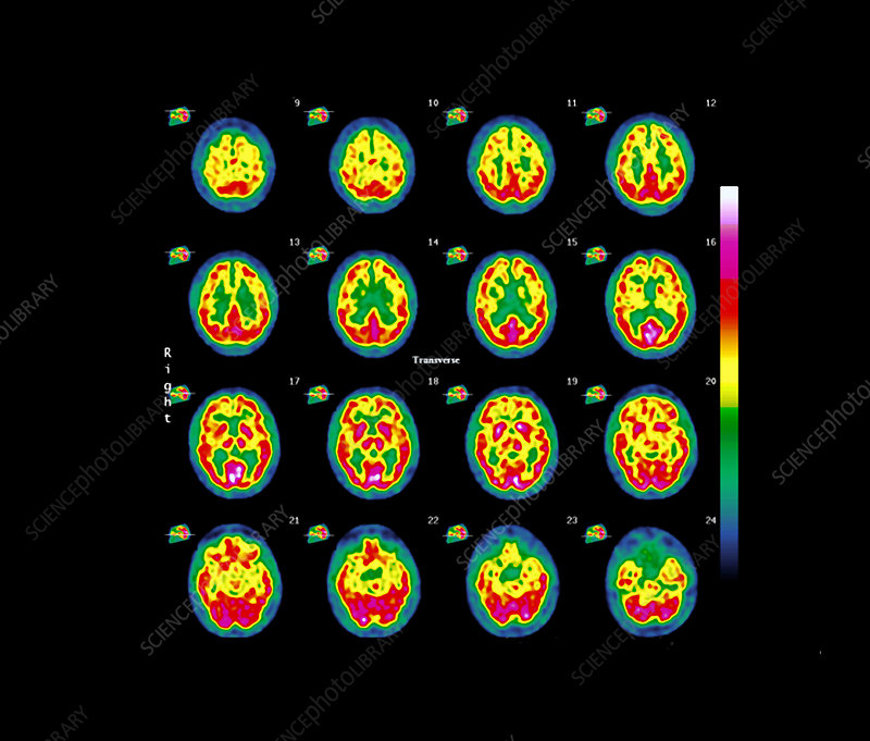 Supranuclear palsy, SPECT brain scans