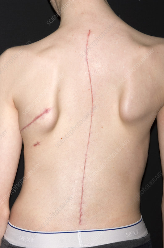 Scoliosis treatment scars