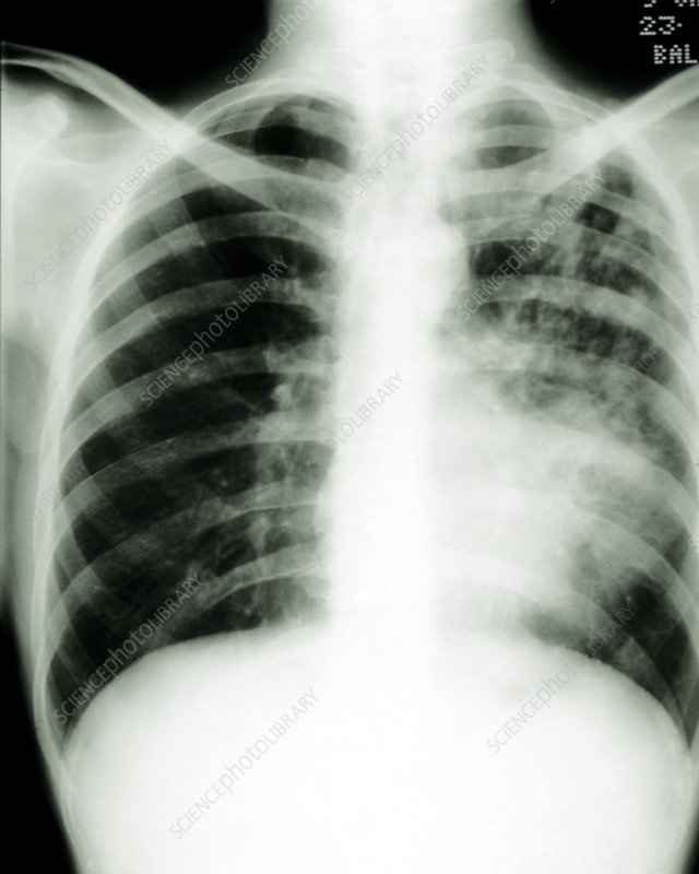 X-ray of human chest showing pulmonary TB