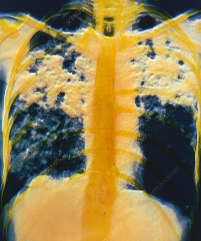 F/col chest X-ray of pulmonary tuberculosis