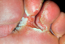 Athlete's foot infection between the toes