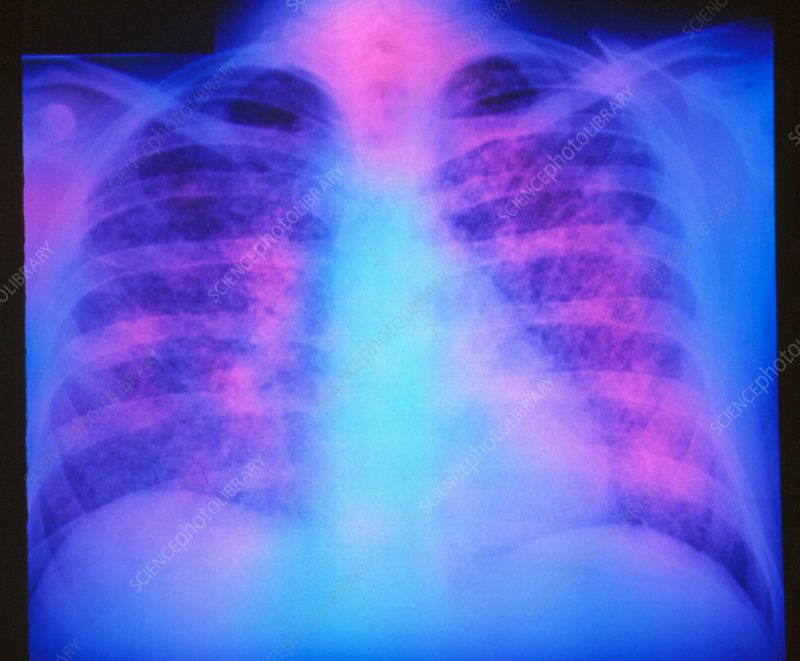 False-colour chest X-ray: miliary tuberculosis