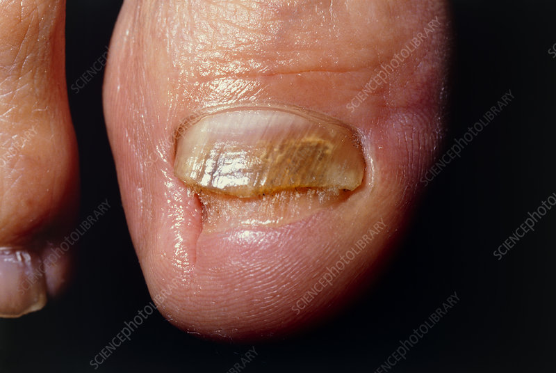 Chronic fungal infection of toes