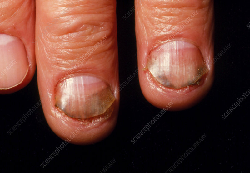 Chronic fungal infection of fingernails