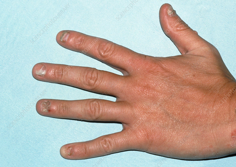 View of hand with fungal nail infection (tinea)