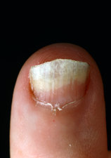 Fingernail infected with ringworm.