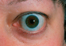 Bulging eye (exophthalmos) due to thyrotoxicosis