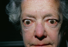 Exophthalmos (bulging eyes) due to thyroid disease